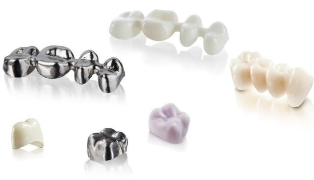 zubna-protetika-3