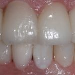 Stanje zubiju nakon oralne rehabilitacije
