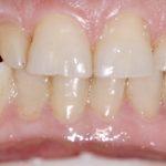 Stanje zubiju prije oralne rehabilitacije